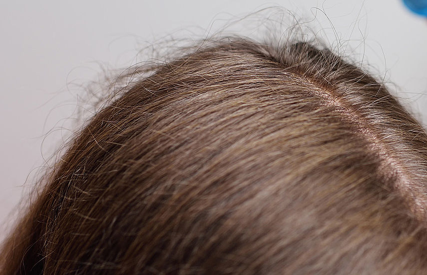Mann strohige haare Dickes Strohiges